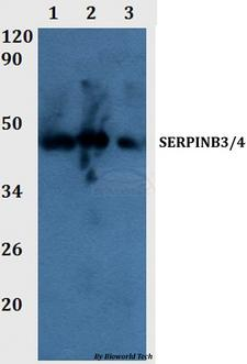 SERPINB3+4 Antibody - Western blot of SERPINB3/4 antibody at 1:500 dilution Line1:THP-1 whole cell lysate Line2:PC12 whole cell lysate Line3:sp20 whole cell lysate.