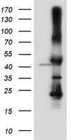 HEK293T cells were transfected with the pCMV6-ENTRY control (Left lane) or pCMV6-ENTRY SERPINB6 (Right lane) cDNA for 48 hrs and lysed. Equivalent amounts of cell lysates (5 ug per lane) were separated by SDS-PAGE and immunoblotted with anti-SERPINB6.