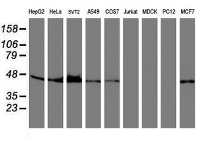 Western blot of extracts (35 ug) from 9 different cell lines by using anti-SERPINB6 monoclonal antibody.