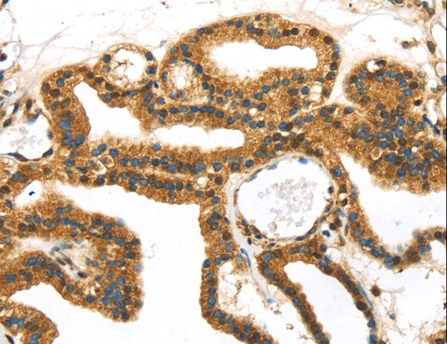 Immunohistochemistry of Human thyroid cancer using SERPINB8 Polyclonal Antibody at dilution of 1:40.