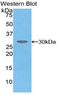 Western blot of recombinant SERPIND1 / Heparin Cofactor 2.  This image was taken for the unconjugated form of this product. Other forms have not been tested.