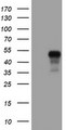 HEK293T cells were transfected with the pCMV6-ENTRY control (Left lane) or pCMV6-ENTRY SERPINE2 (Right lane) cDNA for 48 hrs and lysed. Equivalent amounts of cell lysates (5 ug per lane) were separated by SDS-PAGE and immunoblotted with anti-SERPINE2.