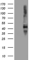 SERPINE2 / Nexin Antibody - HEK293T cells were transfected with the pCMV6-ENTRY control (Left lane) or pCMV6-ENTRY SERPINE2 (Right lane) cDNA for 48 hrs and lysed. Equivalent amounts of cell lysates (5 ug per lane) were separated by SDS-PAGE and immunoblotted with anti-SERPINE2.