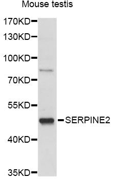 SERPINE2 / Nexin Antibody - Western blot analysis of extracts of mouse testis, using SERPINE2 antibody at 1:1000 dilution. The secondary antibody used was an HRP Goat Anti-Rabbit IgG (H+L) at 1:10000 dilution. Lysates were loaded 25ug per lane and 3% nonfat dry milk in TBST was used for blocking. An ECL Kit was used for detection and the exposure time was 5s.