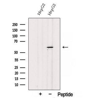 SESN3 Antibody - Western blot analysis of extracts of COS-7 cells using SESN3 antibody. The lane on the left was treated with blocking peptide.