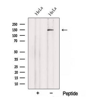 SETBP1 / SEB Antibody - Western blot analysis of extracts of HeLa cells using SETBP1 antibody. The lane on the left was treated with blocking peptide.