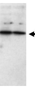 SFRP1 Antibody - Western blot using the Affinity Purified Anti-SFRP1 antibody shows detection of a band ~37 kDa band (arrowhead) corresponding to SFRP1 in lysates from human cultured airway epithelial cells. Lysates were run on a SDS-PAGE and transferred onto nitrocellulose followed by reaction with a 1:230 dilution of anti-SFRP1 antibody overnight at 4°C. Signal was detected using standard techniques.