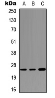 SFTPA1 / Surfactant Protein A Antibody - Western blot analysis of SFTPA1 expression in HEK293T (A); NS-1 (B); PC12 (C) whole cell lysates.