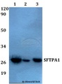 SFTPA1 / Surfactant Protein A Antibody - Western blot of SFTPA1 antibody at 1:500 dilution. Lane 1: HEK293T whole cell lysate. Lane 2: sp2/0 whole cell lysate. Lane 3: PC12 whole cell lysate.