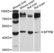 SFTPB / Surfactant Protein B Antibody - Western blot analysis of extracts of various cell lines, using SFTPB antibody at 1:1000 dilution. The secondary antibody used was an HRP Goat Anti-Rabbit IgG (H+L) at 1:10000 dilution. Lysates were loaded 25ug per lane and 3% nonfat dry milk in TBST was used for blocking. An ECL Kit was used for detection and the exposure time was 3s.