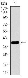 Western blot using SFTPC monoclonal antibody against human SFTPC recombinant protein. (Expected MW is 38.4 kDa)
