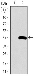Western blot using SFTPC monoclonal antibody against HEK293 (1) and SFTPC (AA: 60-180)-hIgGFc transfected HEK293 (2) cell lysate.