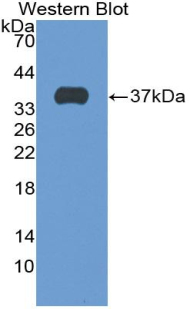 Western blot of recombinant SFTPD / Surfactant Protein D.