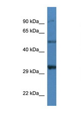 SGCD / Delta-Sarcoglycan antibody Western blot of Mouse Kidney lysate. Antibody concentration 1 ug/ml. This image was taken for the unconjugated form of this product. Other forms have not been tested.