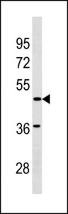 SGCE Antibody - SGCE Antibody western blot of A2058 cell line lysates (35 ug/lane). The SGCE antibody detected the SGCE protein (arrow).