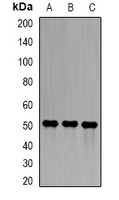 SGCE Antibody - Western blot analysis of Epsilon-sarcoglycan expression in A549 (A); ES2 (B); mouse lung (C) whole cell lysates.