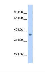 Fetal heart cell lysate. Antibody concentration: 1.25 ug/ml. Gel concentration: 12%.  This image was taken for the unconjugated form of this product. Other forms have not been tested.