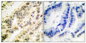 IHC of paraffin-embedded human breast carcinoma, using SGK (Phospho-Ser422) Antibody. The sample on the right was incubated with synthetic peptide.