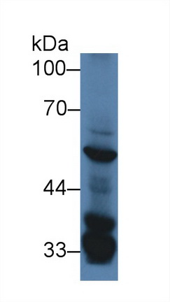 Western Blot; Sample: Mouse Liver lysate; Primary Ab: 2µg/ml Rabbit Anti-Mouse SGK3 Antibody Second Ab: 0.2µg/mL HRP-Linked Caprine Anti-Rabbit IgG Polyclonal Antibody