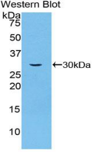 Western blot of recombinant SGK3.  This image was taken for the unconjugated form of this product. Other forms have not been tested.