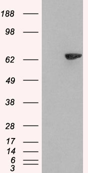 HEK293 overexpressing SH2B3 (RC218359) and probed with (mock transfection in first lane).