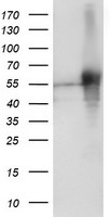 SH2D2A Antibody - HEK293T cells were transfected with the pCMV6-ENTRY control (Left lane) or pCMV6-ENTRY SH2D2A (Right lane) cDNA for 48 hrs and lysed. Equivalent amounts of cell lysates (5 ug per lane) were separated by SDS-PAGE and immunoblotted with anti-SH2D2A.