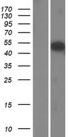 SH2D7 Protein - Western validation with an anti-DDK antibody * L: Control HEK293 lysate R: Over-expression lysate
