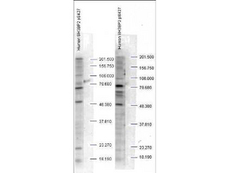 Anti-SH3BP2 pS427 Antibody - Western Blot. Western blot analysis is shown using Affinity Purified anti-SH3BP2 pS427 antibody to detect endogenous protein present in unstimulated human whole cell lysates). The band as indicated by the arrowheads is evident in both M059 cells (panel A) and PC-3 cells (panel B). Comparison to a molecular weight marker indicates a band of ~60 kD corresponding to human SH3BP2 protein. The blot was incubated with a 1:500 dilution of the antibody at room temperature followed by detection using standard techniques. Personal communication Steven Pelech, Kinexus Inc.
