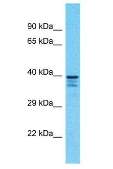 SH3GLB1 / Bif / Endophilin B1 antibody Western Blot of U937. Antibody dilution: 1 ug/ml.  This image was taken for the unconjugated form of this product. Other forms have not been tested.