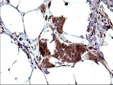 SHBG Antibody - IHC of paraffin-embedded Adenocarcinoma of Human breast tissue using anti-SHBG mouse monoclonal antibody. (Heat-induced epitope retrieval by 10mM citric buffer, pH6.0, 120°C for 3min).