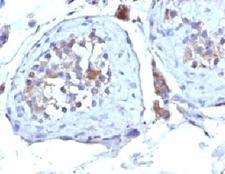 SHBG Antibody - Formalin-fixed, paraffin-embedded human testicular carcinoma stained with SHBG antibody (SHBG/245).  This image was taken for the unmodified form of this product. Other forms have not been tested.