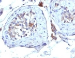 Formalin-fixed, paraffin-embedded human testicular carcinoma stained with SHBG antibody (SHBG/245).  This image was taken for the unmodified form of this product. Other forms have not been tested.