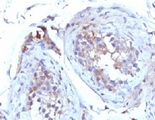IHC testing of FFPE human testicular carcinoma with SHBG antibody (clone TTEB3).  This image was taken for the unmodified form of this product. Other forms have not been tested.