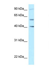 SHCBP1L / C1orf14 Antibody - SHCBP1L antibody Western blot of Jurkat Cell lysate. Antibody concentration 1 ug/ml.  This image was taken for the unconjugated form of this product. Other forms have not been tested.
