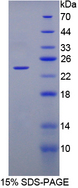 FGF1 / Acidic FGF Protein - Recombinant  Fibroblast Growth Factor 1, Acidic By SDS-PAGE