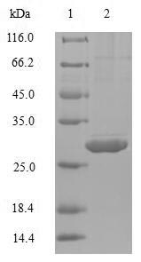 IL4 Protein - (Tris-Glycine gel) Discontinuous SDS-PAGE (reduced) with 5% enrichment gel and 15% separation gel.