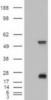 HEK293T cells were transfected with the pCMV6-ENTRY control (Left lane) or pCMV6-ENTRY SHH (Right lane) cDNA for 48 hrs and lysed. Equivalent amounts of cell lysates (5 ug per lane) were separated by SDS-PAGE and immunoblotted with anti-SHH.