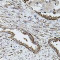 Immunohistochemistry of paraffin-embedded human lung cancer using SHH antibody (40x lens).