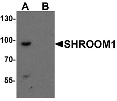SHROOM1 Antibody - Western blot analysis of SHROOM1 in mouse heart tissue lysate with SHROOM1 antibody at 1 ug/ml in (A) the absence and (B) the presence of blocking peptide.