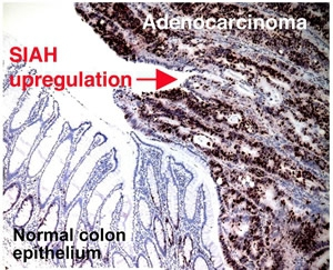 Staining of SIAH in human colorectal adenocarcinoma. Staining of SIAH was not observed in normal colon epithelium.