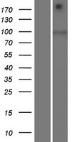 SIDT1 Protein - Western validation with an anti-DDK antibody * L: Control HEK293 lysate R: Over-expression lysate