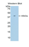 SIGIRR Antibody - Western blot of recombinant SIGIRR.  This image was taken for the unconjugated form of this product. Other forms have not been tested.