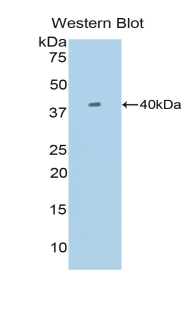 Western blot of recombinant SIGIRR.  This image was taken for the unconjugated form of this product. Other forms have not been tested.