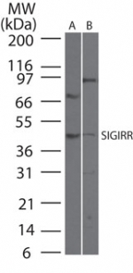 SIGIRR Antibody - Western blot of SIGIRR in40 ugs of A) HCT-116 and B) A549cell lysate using antibody at 1:500 dilution.