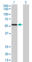 Western Blot analysis of SIGLEC6 expression in transfected 293T cell line by SIGLEC6 monoclonal antibody (M02), clone 2G6.Lane 1: SIGLEC6 transfected lysate(48.3 KDa).Lane 2: Non-transfected lysate.