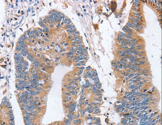 Immunohistochemistry of paraffin-embedded Human colon cancer using SIGLEC6 Polyclonal Antibody at dilution of 1:70.