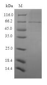 Sindbis Virus Structural polyprotein Protein - (Tris-Glycine gel) Discontinuous SDS-PAGE (reduced) with 5% enrichment gel and 15% separation gel.