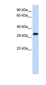 SIP1 antibody Western blot of HeLa lysate. This image was taken for the unconjugated form of this product. Other forms have not been tested.