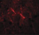 Immunofluorescence of SIPA1 in human brain cells with SIPA1 antibody at 20 ug/ml.