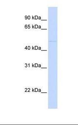 SIRPA / CD172a Antibody - MCF7 cell lysate. Antibody concentration: 1.0 ug/ml. Gel concentration: 12%.  This image was taken for the unconjugated form of this product. Other forms have not been tested.